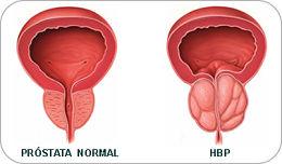 tamaño promedio de la próstata por 70 años